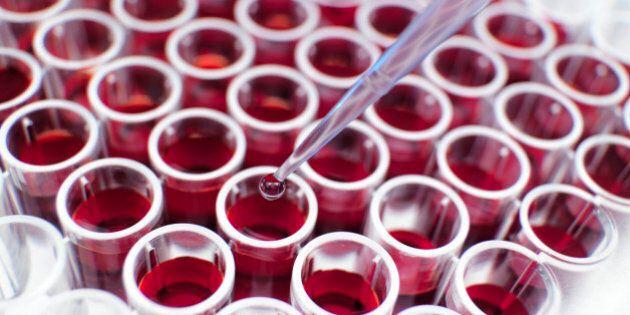 Vampire Therapy, trasfusioni di sangue giovane per rallentare l'invecchiamento: 3 studi pubblicati su...