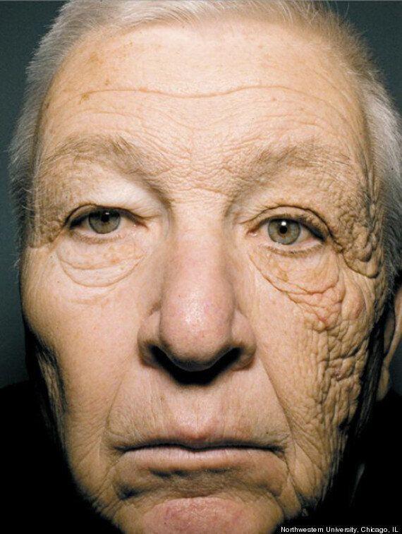 Il sole invecchia la pelle, metà volto mostra 10 anni in più. La foto choc sul New England Journal of...