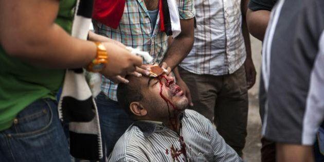 Scontri in Egitto fra islamisti ed esercito al Cairo. Più di 50 morti, 250 feriti e centinaia di arresti