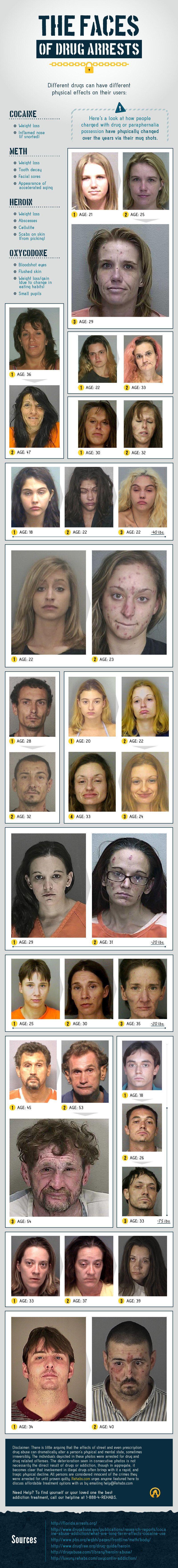 Gli effetti delle droghe pesanti: come cocaina, eroina, ossicodone cambiano i volti delle persone (FOTO,