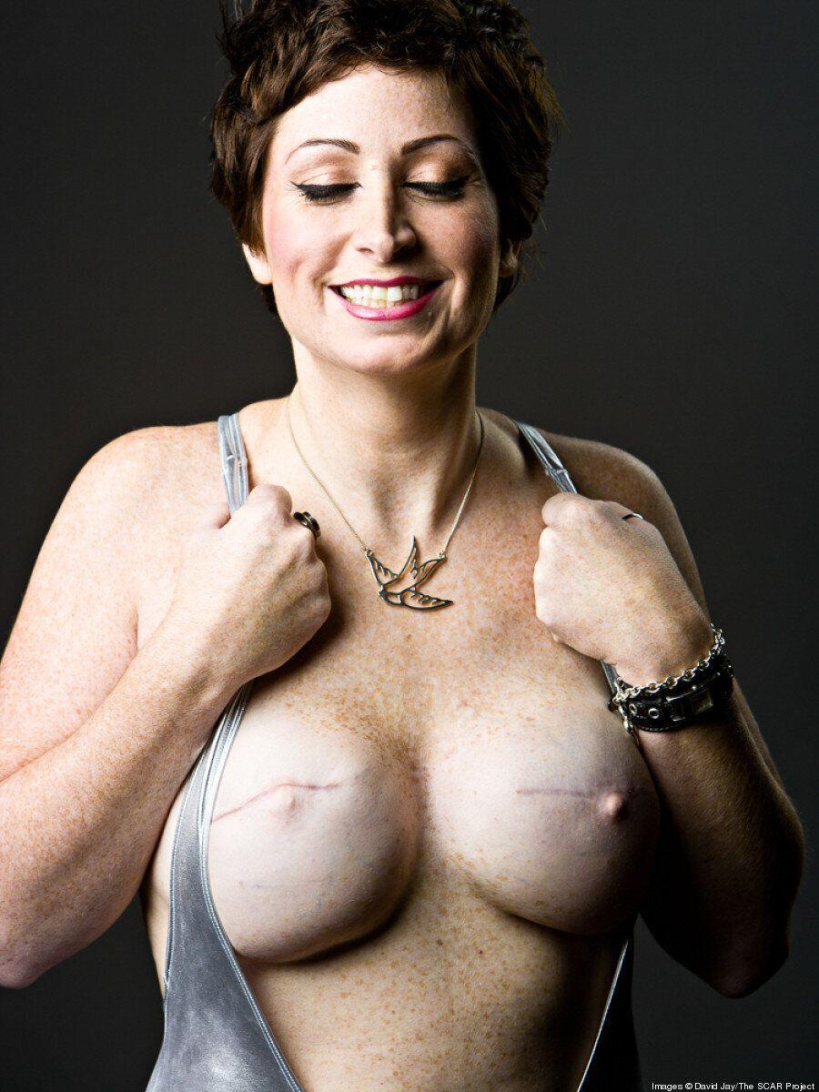 Cancro al seno,