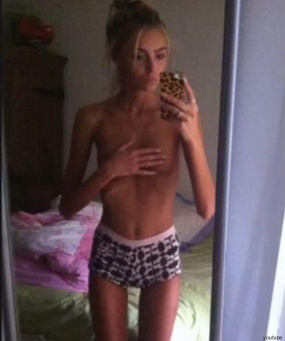 Anoressia, Beth Cowan, 19 anni, racconta ad un concorso di bellezza come ha sconfitto la malattia.