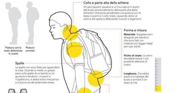 Zaino pesante? Ecco gli effetti che può avere sul corpo di un bambino. I consigli? Sì agli E-book, niente...