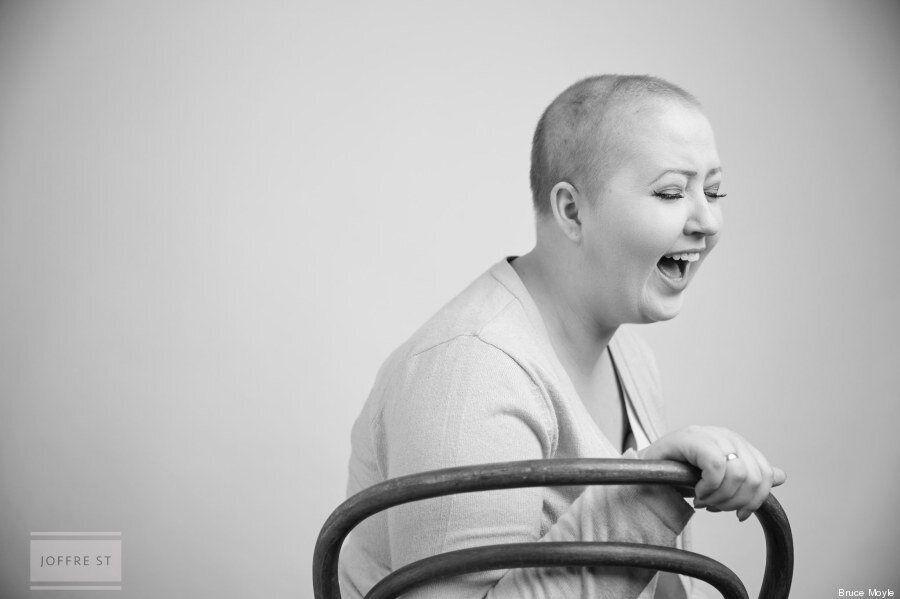 Cancro al seno, le foto di Allison Snare, 24 anni, dopo la doppia mastectomia.