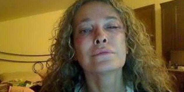Laura, trans di Viareggio, picchiata e insultata da un ragazzo fuori dalla discoteca di Calcinaia in...