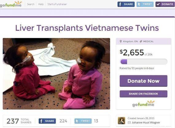 Un padre può salvare solo una delle sue figlie malate: organizza un crowdfunding per trovare l'altro...