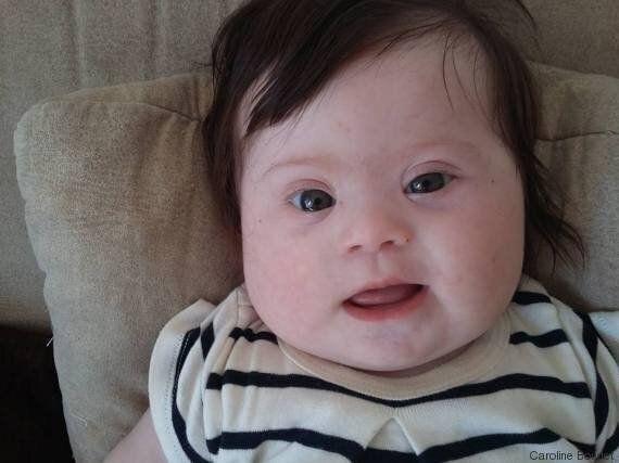 Louise, mia figlia. Quattro mesi, due braccia, due gambe e un cromosoma in