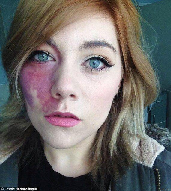 Lexxie Harford e quella voglia rossa sul viso: