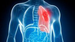 Tumore al polmone? Basterà un esame del sangue per