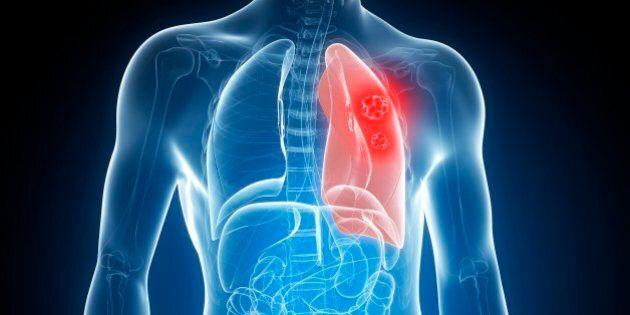 Il tumore al polmone si potrà scoprire con un semplice esame del sangue. La scoperta dei ricercatori...