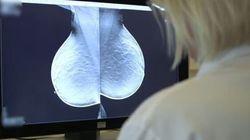 L'esame che scopre il 40% di tumori in più rispetto alla
