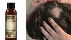 In Usa la class action contro lo shampoo