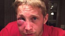 La risposta di questo ragazzo autistico picchiato dai bulli è una lezione di