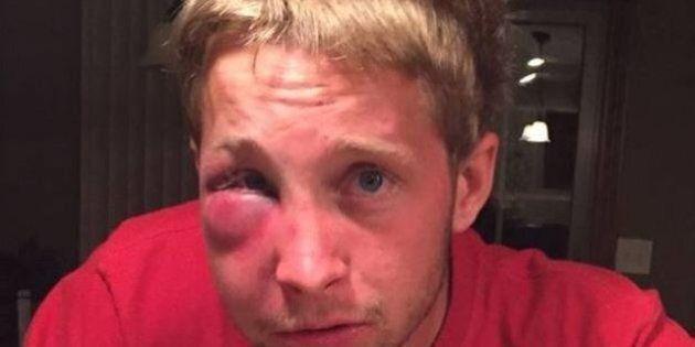 Adolescente autistico viene picchiato da bulli: