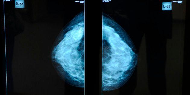 France, Pays de la Loire, Loire-Atlantique, Nantes, René Gauducheau cancer resarch centre,
