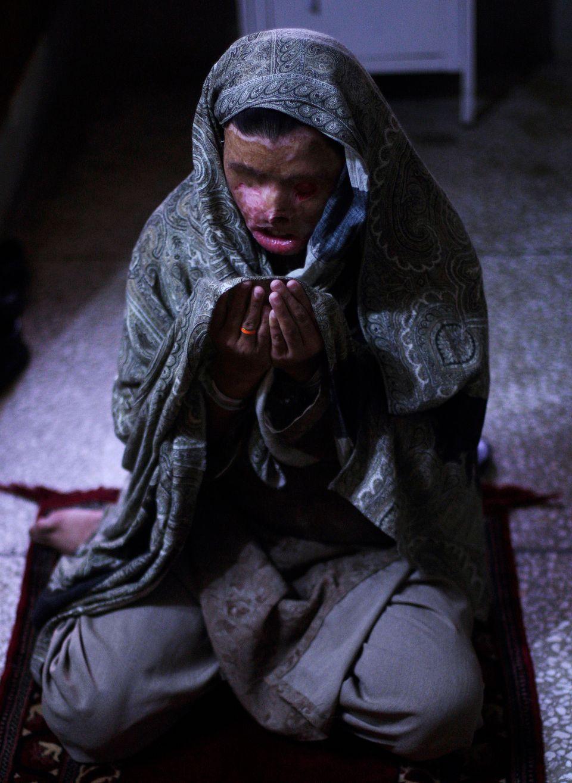 In this photo taken Friday, Jan. 22, 2010, Pakistani acid attack survivor, Naziran Bibi, 23, attends Muslim's Friday prayers