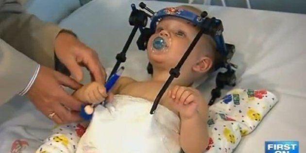 Bambino decapitato in un incidente d'auto. I medici lo salvano dopo 6 ore in sala operatoria