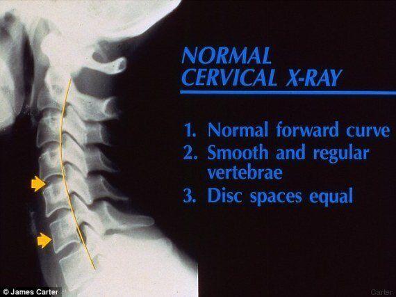 La lastra che mostra i danni da smartphone alla spina dorsale di un bambino di sette anni