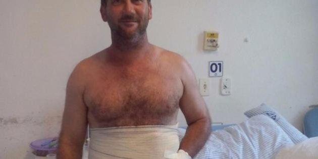 Brasile, rara operazione chirurgica per salvare mano dall'amputazione: cucita dentro il ventre