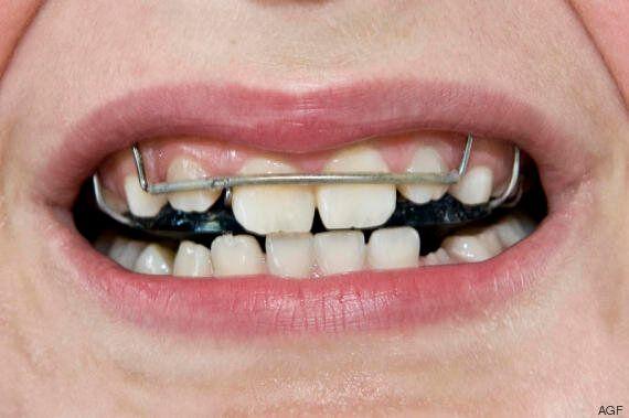 11 cose raccapriccianti che ti faranno smettere di mangiare le