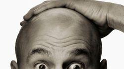 Perdiamo fino a cento capelli al giorno. Ed è