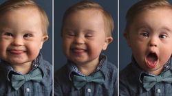 L'agenzia pubblicitaria rifiuta il figlio Down. La risposta della mamma è