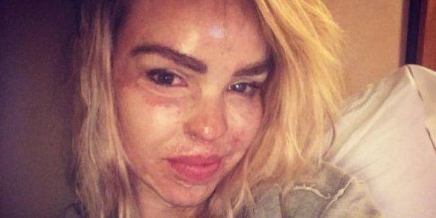 Katie Piper, modella attaccata con l'acido, contro i trucchi di Halloween: