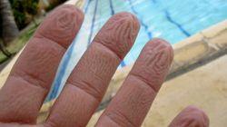 Ecco perché le dita si raggrinziscono in