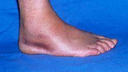 Trovato un piede umano sulla riva del fiume Aniene a