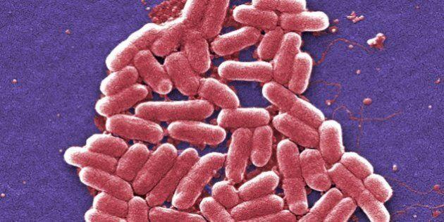 Donna colpita da super-batterio in Pennsylvania, resistente anche agli antibiotici più