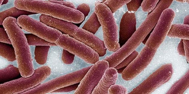 Gli esperti virologi sul caso della donna colpita da un super-batterio resistente ai farmaci:
