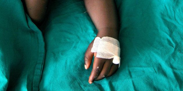Torino, bimbo circonciso in casa muore dopo intervento. L'esperto: