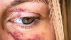 In Russia le violenze domestiche non sono più un reato. Putin firma la legge
