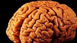 In Usa il primo cervello creato in
