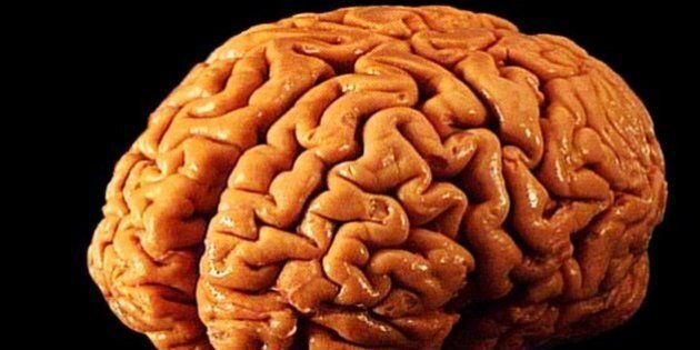 Usa, creato primo cervello in provetta: