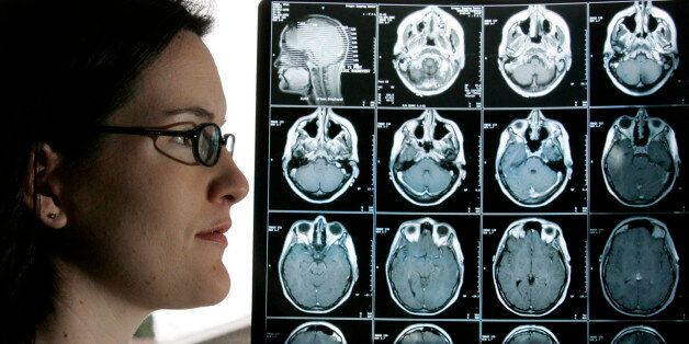 Kyla Nagel stands next to her brain scan at her home Friday, Jan. 28, 2005, in Springfield, Ore. Nagel was diagnosed with an