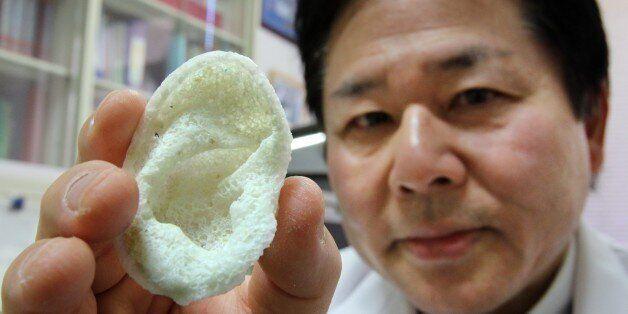 Tsuyoshi Takado, professor of the University of Tokyo Graduate School of Medicine, displays an artificial ear, made of polyac