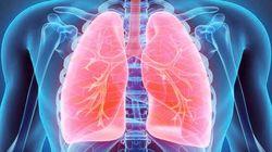Nuovo farmaco 'discioglie' cancro polmoni, senza