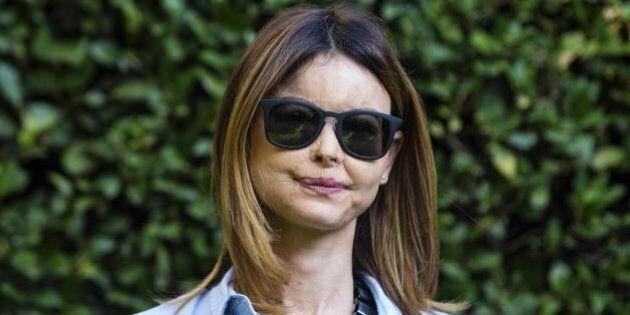 Lucia Annibali, la Cassazione sulla condanna dell'ex fidanzato Luca Varani: