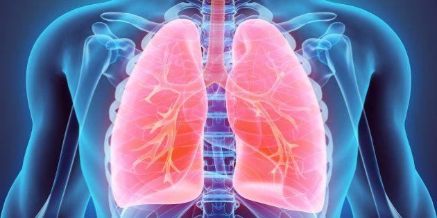 Il tumore del polmone si batte anche con l'immunoterapia.