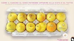 Questi 12 limoni ti aiutano a scoprire se hai un tumore al