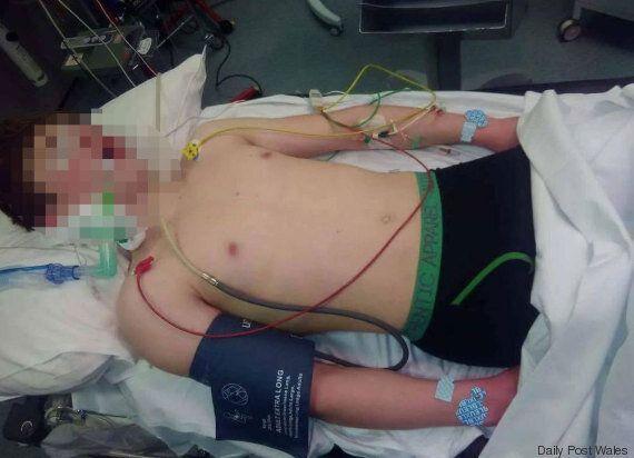 In coma dopo aver assunto ecstasy involontariamente un ragazzo di 14 anni del