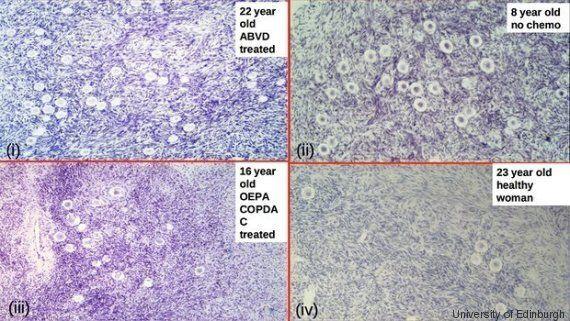 Infertilità femminile, una ricerca dà speranza: un mix di farmaci usati nella chemioterapia