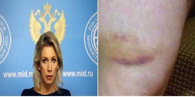 La risposta della portavoce del ministero degli Esteri russo sui gay uccisi in Cecenia è la