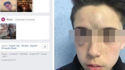 Tredicenne aggredito dai bulli nel Napoletano: i genitori postano foto choc del volto