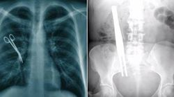 Pinze, tubi e asciugamani: gli oggetti più assurdi dimenticati dai medici nel corpo dei