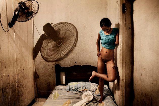 Salvador de Bahia, Brasile, 2009. Gisela è una prostituta di 21 anni a cui stato tagliato un braccio...