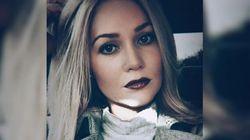 Questa ragazza ha postato un'immagine di lei con il viso deturpato su Facebook e ha salvato centinaia di