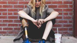 La modella che ha perso la gamba a causa dell'assorbente interno ora rischia di perdere anche