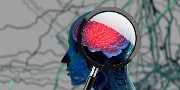 Pfizer abbandona la ricerca contro Alzheimer e Parkinson: risultati troppo